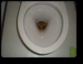 トイレ便器内部に尿石が蓄積してます。 大阪のエアコン・ハウスクリーニング|気になる汚れを徹底洗浄